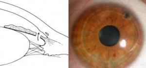 Augenzentrum_Iridotomie