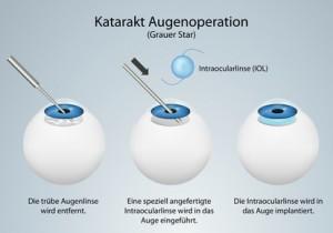 Katarakt-Operation