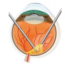 Schema einer Glaskörper und Netzhaut -OP